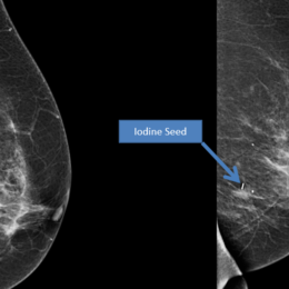 New 'seed' scan shows location of Iodine seed, which helps the team to identify abnormalities in breast tissue